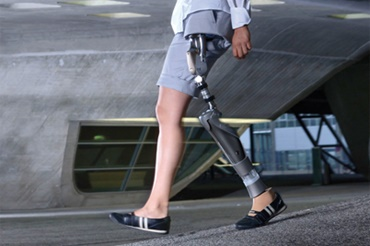 Hip joint prosthesis with iglidur bearings by Otto Bock HealthCare GmbH